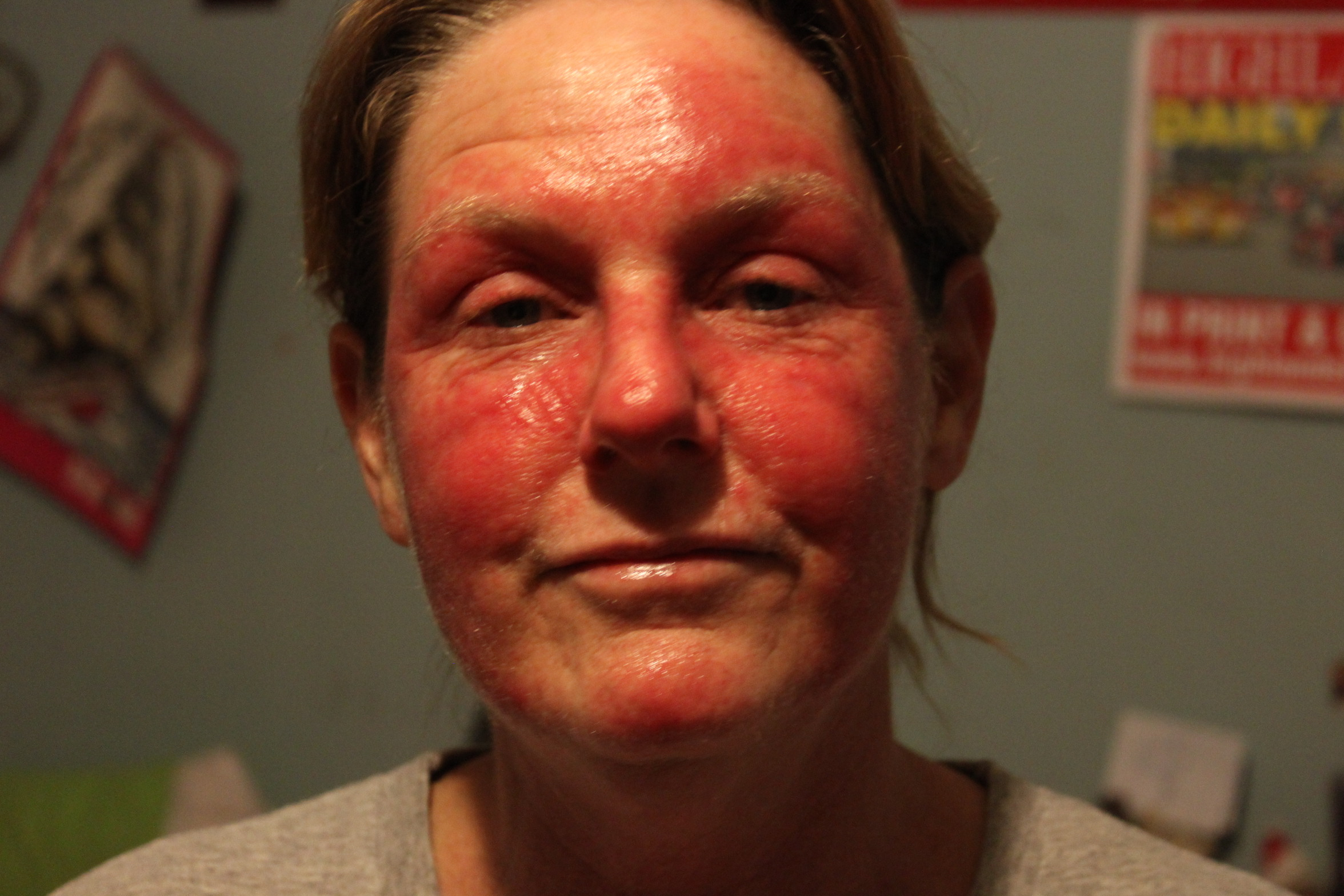 steroid cream psoriasis over counter